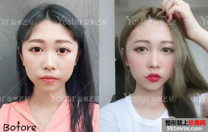 艺星注射瘦脸针去咬肌一个月了,分享前后对比效果照片哦~