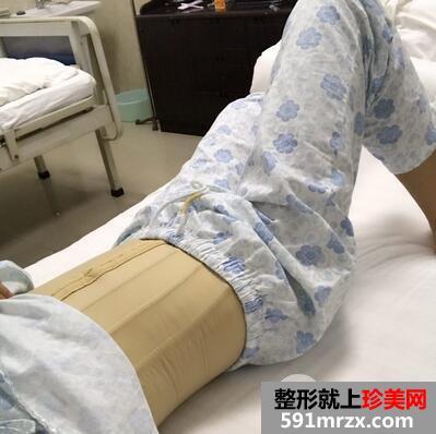 腹部抽脂过程_上海茸城医院王海龙院长腰腹部吸脂案例分享_珍美网