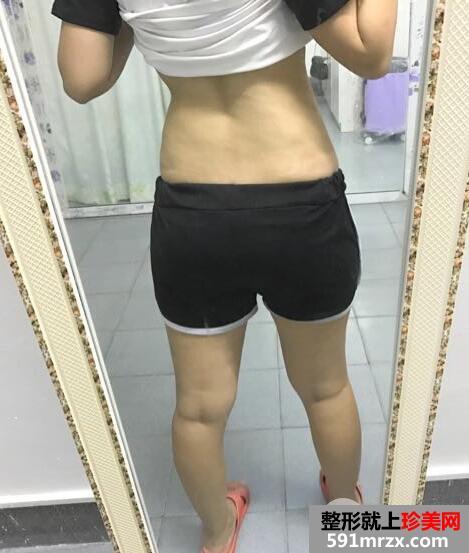 腹部抽脂过程_腰腹部吸脂前后对比图 前后效果恢复过程分享_珍美网