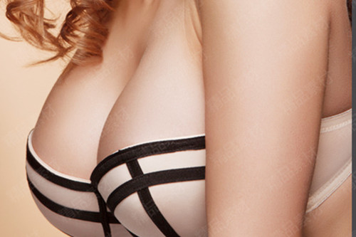 乳房隆胸术的效果