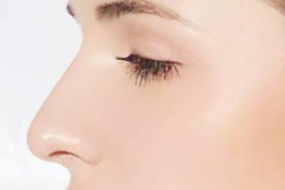 隆鼻手术的后遗症