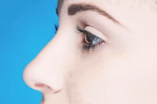 隆鼻手术的后遗症是什么?